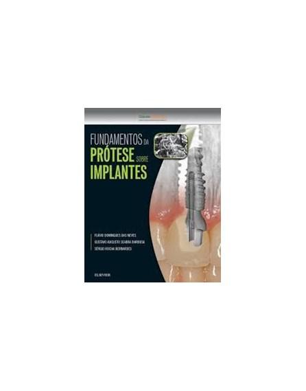 Livro - Fundamentos da Prótese sobre Implantes - Neves 1ª edição