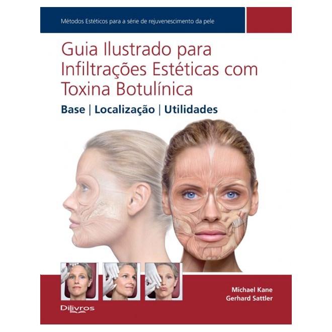 Livro - Guia Ilustrado para Infiltrações Estéticas com Toxina Botulínica - Base, Localização, Utilidades - Kane