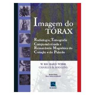 Livro - Imagem do Tórax - Radiologia, Tomografia Computadorizada e Ressonância Magnética do Coração e do Pulmão - Webb