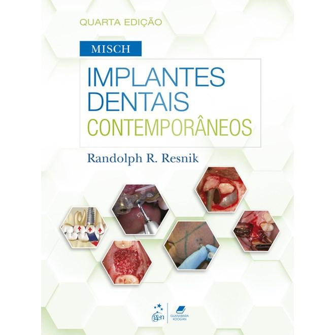 Livro - Implantes Dentais Contemporâneos - Misch