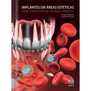 Livro - Implantes em Áreas Estéticas - Conceitos Atuais de Cirurgia e Prótese - Hayashi