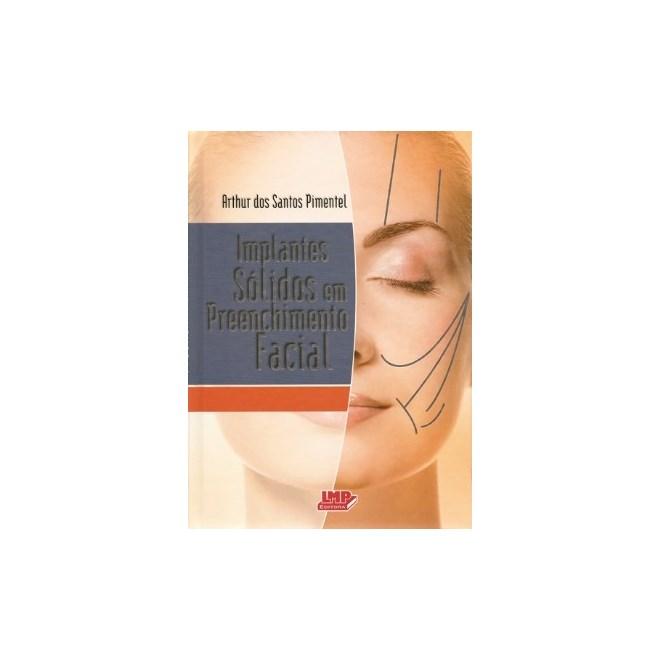 Livro - Implantes Sólidos em Preenchimento Facial - Pimentel