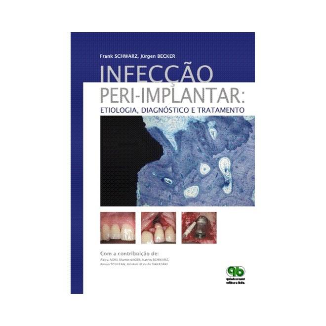 Livro - Infecção peri-implantar: Etiologia, Diagnóstico e Tratamento - Schwarz - Santos