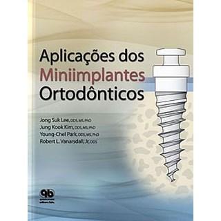 Livro - Livro - Aplicações dos Miniimplantes Ortodonticos - Vanarsdall Junior