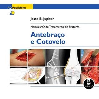 Livro - Manual AO de Tratamento de Fraturas: Antebraço e Cotovelo - Jupiter @@