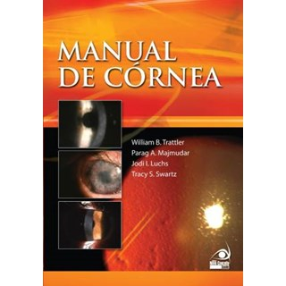 Livro - Manual de Córnea - Trattler