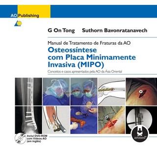 Livro - Manual de Tratamento de Fraturas da AO - Osteossíntese com Placa Minimamente Invasiva MIPO - Inclui DVD-Rom @@