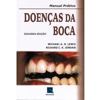 Livro - Manual Prático Doenças da Boca - Lewis