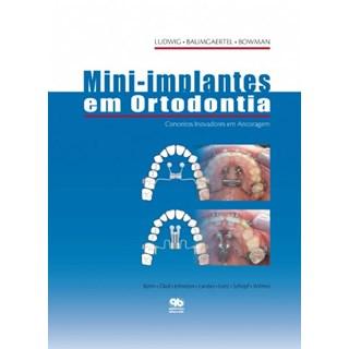 Livro - Mini-Implantes em Ortodontia - Ludwig - Santos