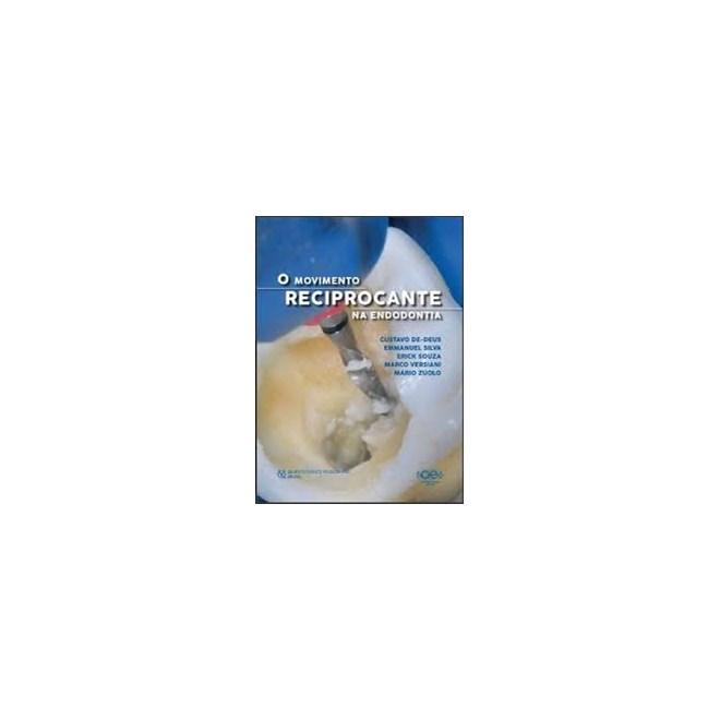 Livro Movimento Reciprocante na Endodontia, O - Souza