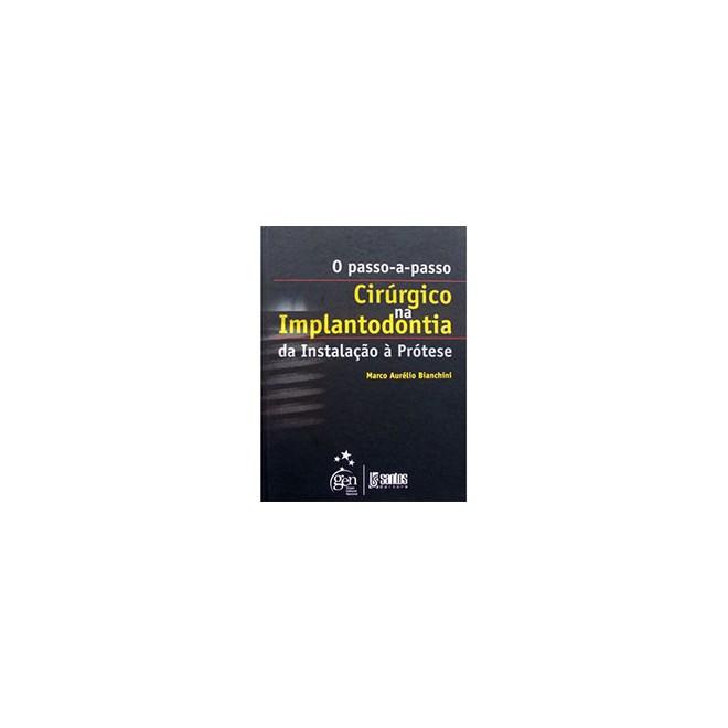 Livro - O Passo a Passo Cirúrgico na Implantodontia da Instalação à Prótese - Bianchini