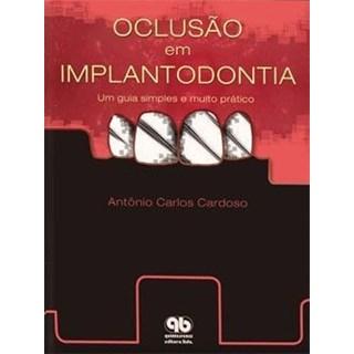 Livro - Oclusão em Implantodontia - Um Guia Simples e Muito Prático - Cardoso - Santos