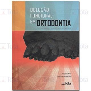 Livro Oclusão Funcional em Ortodontia - Monte - Tota