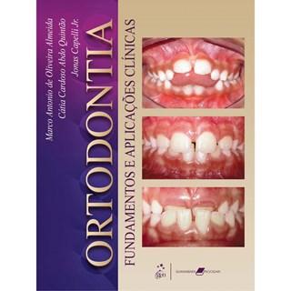 Livro - Ortodontia: Fundamentos e Aplicações Clínicas - Almeida