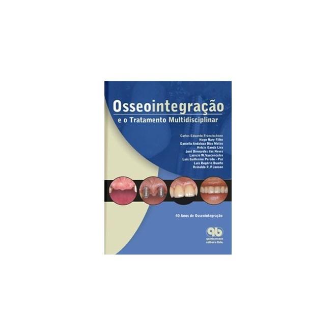Livro - Osseointegração e o Tratamento Multidisciplinar - Francischone