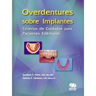 Livro - Overdentures sobre Implantes - Feine