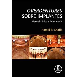 Livro - Overdentures Sobre Implantes - Hamid R. Shafie