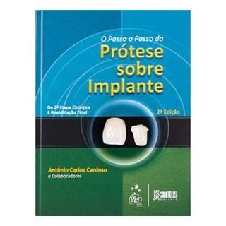 Livro - Passo-a-Passo da Prótese Sobre Implantes, O - Cardoso
