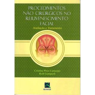 Livro - Procedimentos não Cirúrgicos no Rejuvenescimento Facial - Camargo