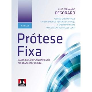 Livro - Prótese Fixa - Bases para o Planejamento em Reabilitação Oral - Pegoraro