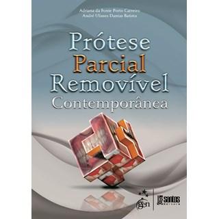 Livro - Prótese Parcial Removível Contemporânea - Carreiro