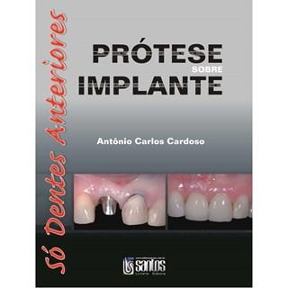 Livro - Prótese sobre Implante: Só Dentes Anteriores - Cardoso