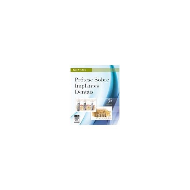 Livro - Prótese sobre Implantes Dentais - Misch