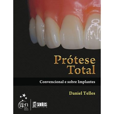 Livro - Prótese Total - Convencional e Sobre Implantes - Telles