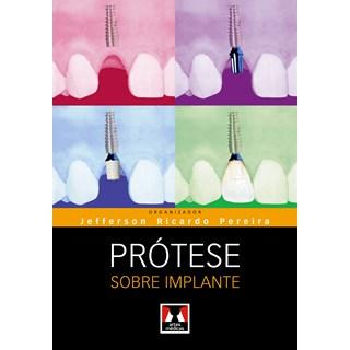 Livro - Próteses sobre Implante - Pereira