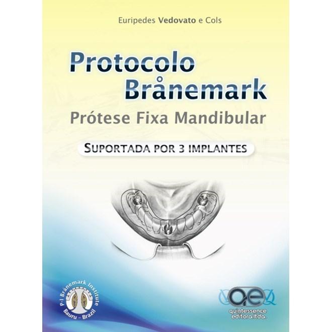 Livro - Protocolo Branemark:  Prótese Total Fixa Mandibular Suportada por 3 Implantes - Vedovato e Cols - Santos