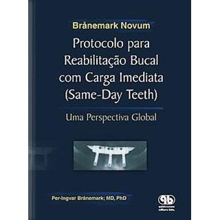 Livro - Protocolo para Reabilitação Bucal com Carga Imediata - Branemark Novum