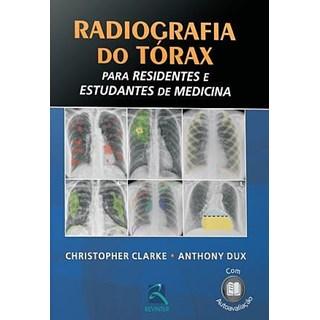 Livro - Radiografia do Tórax para Residentes e Estudantes de Medicina - Clarke