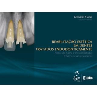 Livro - Reabilitação Estética Dentes Tratados Endodonticamente: Pinos de Fibra Possibilidades Clínicas Conservadoras - Muniz