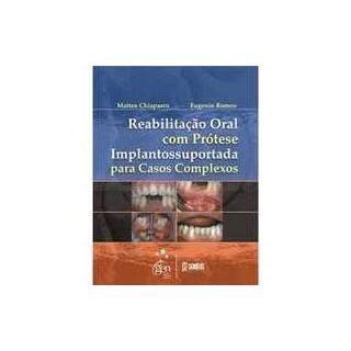 Livro - Reabilitação Oral com Prótese Implantossuportada para Casos Complexos - Chiapasco