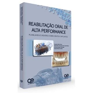 Livro - Reabilitação Oral de Alta Performance: Planejamento Reverso sobre Dentes e Implantes - Greco