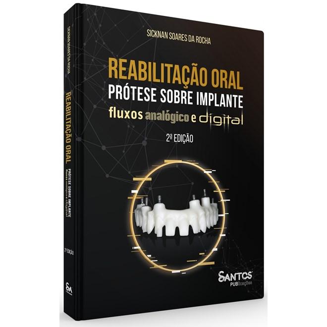 Livro Reabilitação Oral Prótese sobre Implante Fluxos Analógico e Digital - Rocha - Santos Pub