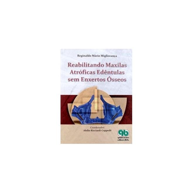 Livro - Reabilitando Maxilas Atróficas Edêntulas sem Enxertos Ósseos - Migliorança - Santos