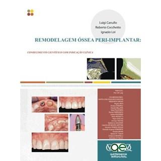 Livro - Remodelagem Óssea Peri-implantar - Bases Científicas e Implicaçoes Clínicas - Canullo
