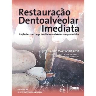 Livro - Restauração Dentoalveolar Imediata - Implantes com Carga Imediata em Alvéolos Comprometidos - Rosa