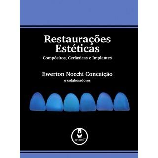 Livro - Restaurações Estéticas Compositos, Cerâmicas e Implantes - Conceição @@