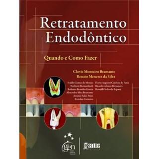 Livro - Retratamento Endodôntico - Quando e Como Fazer - Bramante