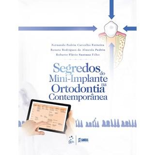 Livro - Segredos do Mini-implante na Ortodontia Contemporânea - Pedrin