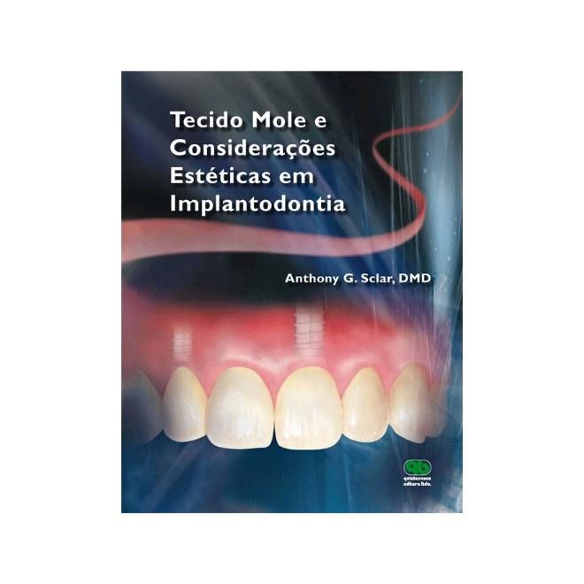 Livro - Tecido Mole e Considerações Estéticas em Implantodontia - Sclar - Santos