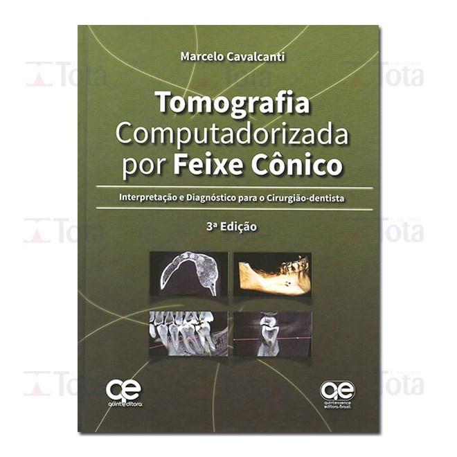 Livro - Tomografia Computadorizada por Feixe Cônico - Interpretação e Diagnóstico para o Cirurgião-Dentista - Cavalcanti