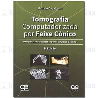 Livro - Tomografia Computadorizada por Feixe Cônico - Interpretação e Diagnóstico para o Cirurgião-Dentista - Cavalcanti - Santos
