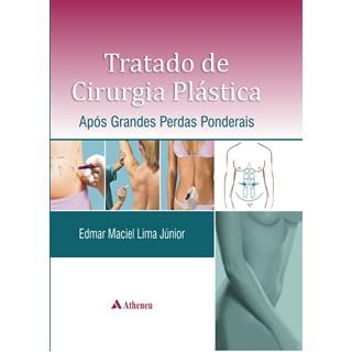 Livro - Tratado de Cirurgia Plástica - Após Grandes Perdas Ponderais - Lima Júnior