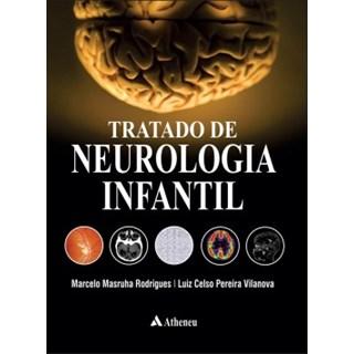 Livro - Tratado de Neurologia infantil - Rodrigues