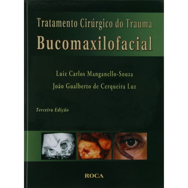 Livro - Tratamento Cirúrgico do Trauma Bucomaxilofacial - Manganello