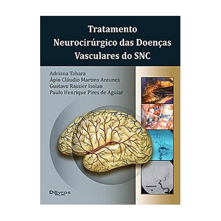 Livro - Tratamento Neurocirúrgico das Doenças Vasculares do SNC - Tahara
