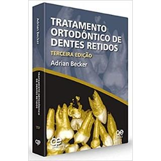 Livro - Tratamento Ortodôntiico de Dentes Retidos - Becker - Santos